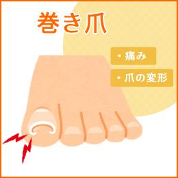 巻き爪の悩み